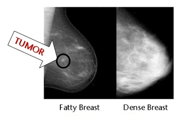 dense-breast